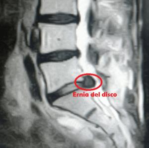 Ernia discale 2