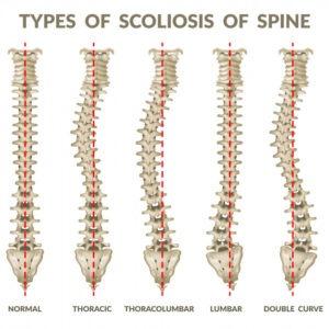 scoliosi-della-colonna-vertebrale